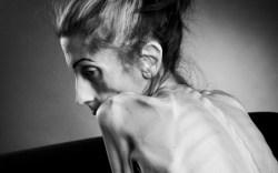 el caso de anorexia de Rachel Farrokh
