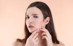 Los Mejores Exfoliantes Faciales Para Cuidar la Piel y Prevenir el Acné