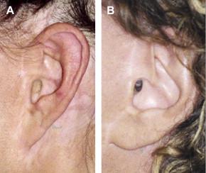 SMAS Facelift Techniques to Minimize Stigmata of Surgery ...