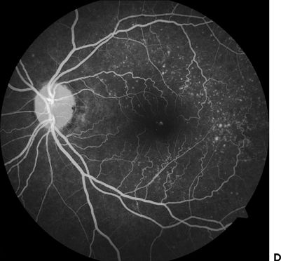 FIGURE 96 AB Fundus Photo Showing Dominant Drusen Syndrome CD Fluorescein Angiography Of The Same Eyes