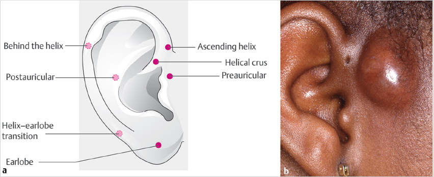 Disorders of the External Ear | Ento Key