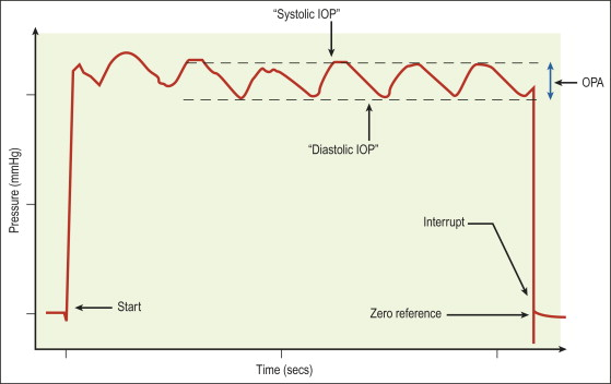 Intraocular pressure | Ento Key
