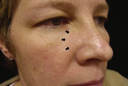 Squamous papilloma forehead. Squamous papilloma about