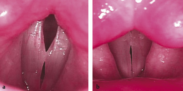 Left vocal fold pseudocyst with reactive selling on right vocal fold; Pseudocysts appear as translucent exophytic masses that resemble a blister. These have classically been referred to as edematous p