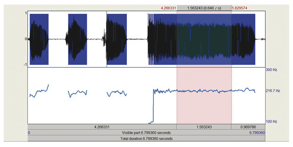"""Adult female (29 years) with breathy voice secondary to vocal nodules producing the sustained vowel /a/ (""""ahhh""""). Measures from a central portion of the vowel production showed a mean F0 = 216.67 Hz a"""