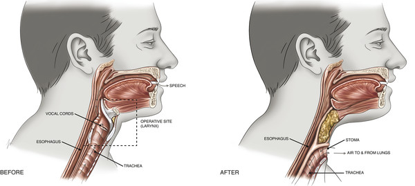 Surgical site of total laryngectomy. The entire laryngeal framework is removed, disconnecting the upper and lower airways from each other. The communication between the pharynx and esophagus remains i