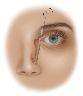 Probing of the nasolacrimal system. A lacrimal probe has been placed through the inferior punctum and canaliculus and then rotated vertically to traverse the lacrimal sac and nasolacrimal duct. The pr