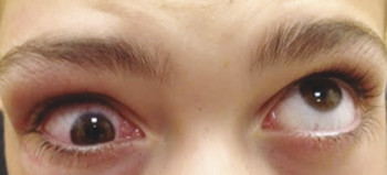 "A ""white-eyed"" or ""trapdoor"" blowout fracture of the right orbital floor in a 12-year-old boy who was struck by a baseball. The right eye exhibits severe limitation of supraduction, but otherwise ther"