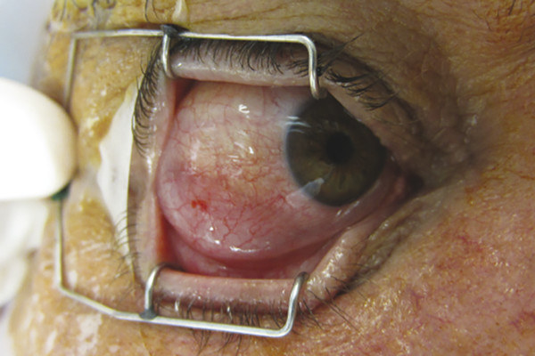 """Classic """"salmon-patch"""" appearance of a conjunctival lymphoma."""