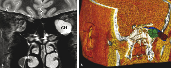 (a) T2-weighted coronal MRI (magnetic resonance imaging) demonstrating the classic appearance of a large extraconal cavernous hemangioma (CH) in the left orbital apex. (b) Three-dimensional reconstruc