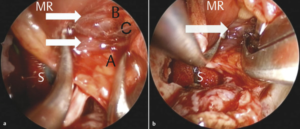 (a) Intraoperative endoscopic view of the left intraconal space demonstrating several branches of the inferomedial muscular trunk of the ophthalmic artery (white arrows) inserting on the medial rectus