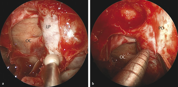 (a) Wide bony exposure of the left lamina papyracea (LP) and optic canal (OC) with drilling of the orbital process of the palatine bone to provide improved access to the inferior aspect of the lesion.