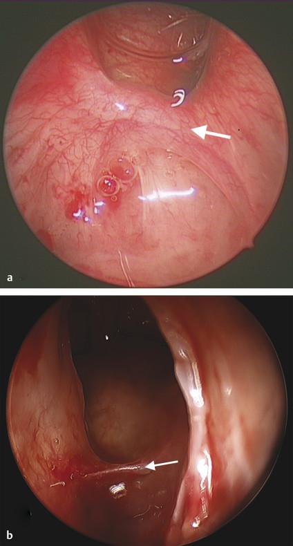 Anterior ethmoid artery (arrow; a) on the skull base and (b) within a mesentery.