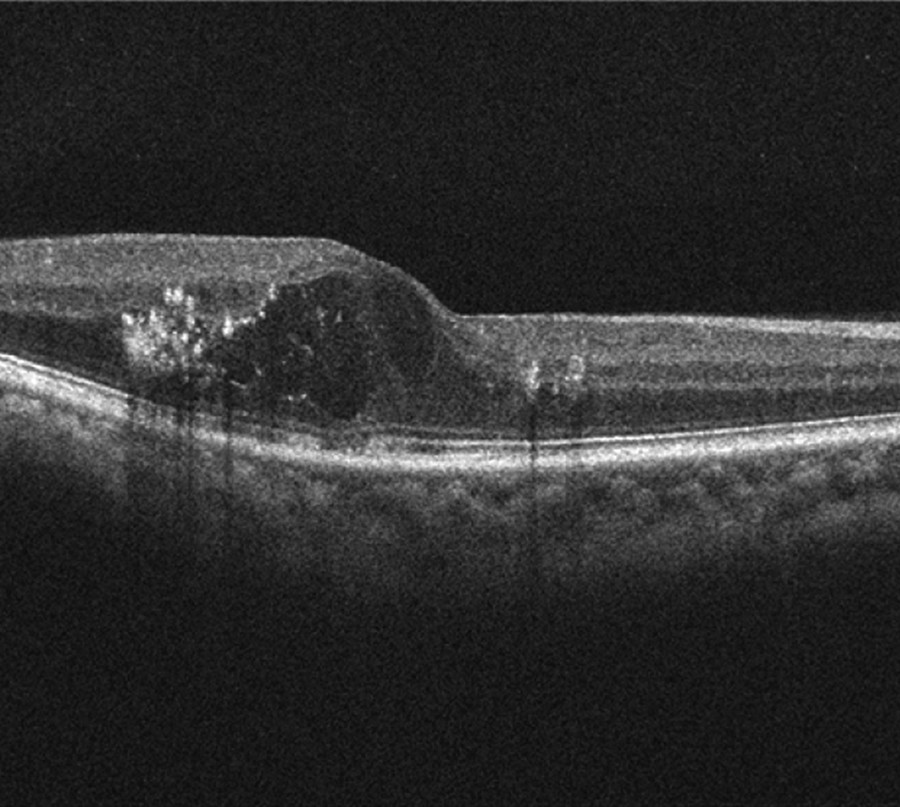 Optical coherence tomography of diabetic macular edema, note hard exudates located mainly in the outer plexiform and some in the outer nuclear layer of the retina.