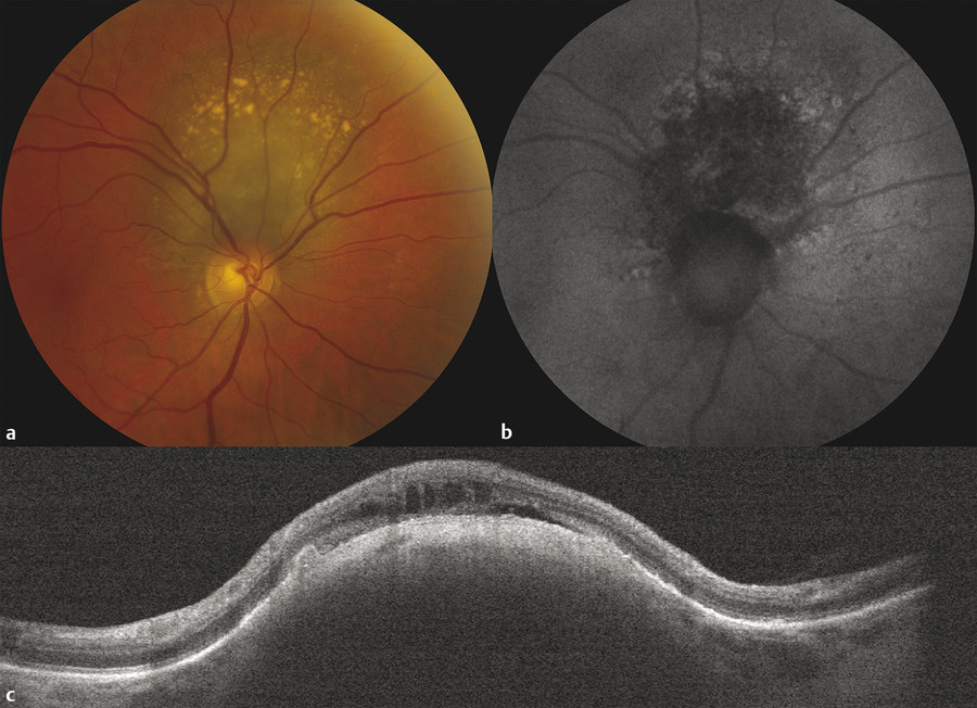 Multimodal imaging of a choroidal nevus. (a) Fundus photography demonstrates overlying drusen. (b) Fundus autofluorescence shows retinal pigment epithelium (RPE) atrophy centrally and mild ring-shaped