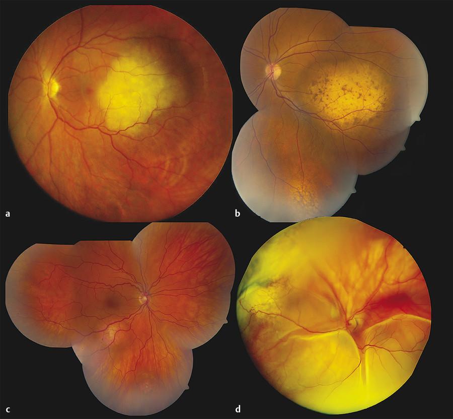 Multifocality of choroidal metastasis. Fundus photography documenting (a) solitary, (b) bifocal, (c) trifocal, and (d) hidden choroidal metastasis.