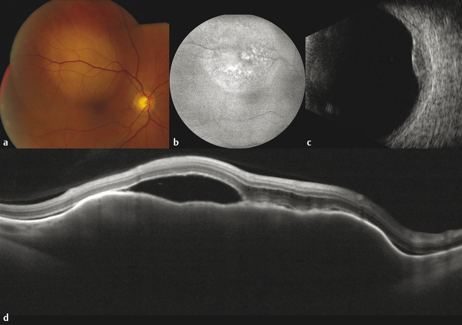 Multimodal imaging of breast cancer metastasis. (a) Fundus photograph demonstrates a creamy-yellow deep lesion. (b) Fundus autofluorescence with hyper-autofluorescence of lipofuscin within the retinal