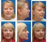 5 Mixed-Plane Rhytidectomy: The Superior Vertical-Vector Approach to Rejuvenation of the Neck
