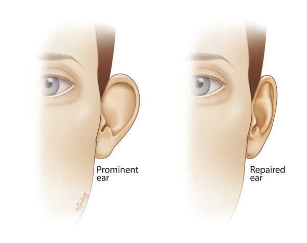 A prominent ear can be caused by lack of an antihelical fold or prominence of the conchal cartilage, or both. Otoplasty can be used to correct both of these, resulting in a less prominent pinna on fro