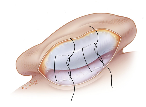 Transcutaneous black nylon sutures are placed to create the superior antihelical fold. These are typically 5-mm wide and separated by 1 cm. The width and tension of the mattress sutures will cause var