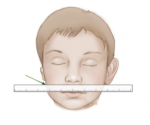 Stage 1 initiates with planning the placement of the reconstructed ear. Standing at the head of the bed, a ruler is used to mark the inferior point of the lobule in symmetry with the nonmicrotia ear.