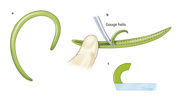 The helix is often carved from the eighth rib cartilage, and is shaped to sit flat on the base plate. The center is gouged to create a curved surface and allow for ease of curvature.