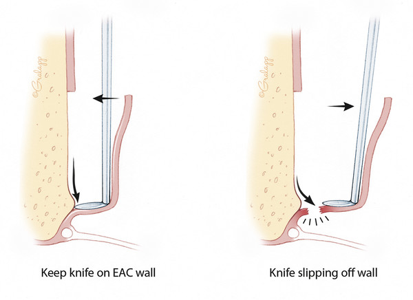 To avoid tearing of the flap or tympanic membrane, it is necessary to maintain continuous pressure with the stapes knife against the bony canal. Allowing the stapes knife to disengage from the canal w