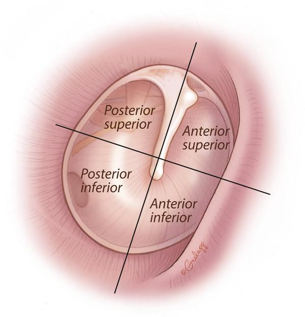 Quadrants of the tympanic membrane.