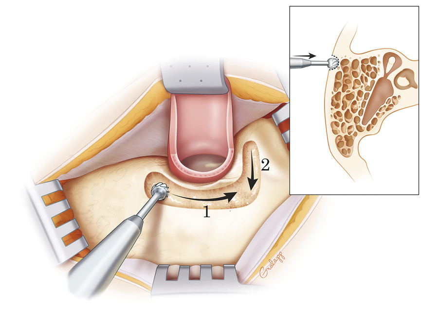 Initial removal of the mastoid cortex behind and above the ear canal is conducted with a cutting burr.
