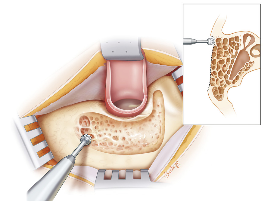 Removal of the outer cortex reveals the peripheral air cell system in the well pneumatized temporal bone.