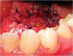 11 Pediatric Endoscopic Salivary Gland Surgery