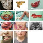 58 Free Flap Transfers in Head-and-Neck Reconstructions of Pediatric Patients