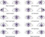 Nature of Binocular Vision Anomalies