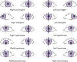 Nature of Binocular Vision Anomalies