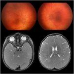 Pseudopapilledema in Cockayne syndrome