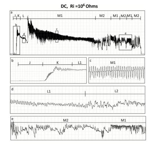 EPG waveforms
