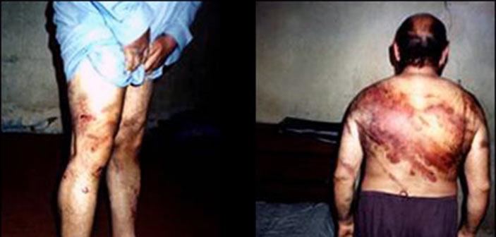 Η Τουρκία στο έλεος των βασανιστών