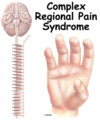 Image result for Complex regional pain syndrome (CRPS)