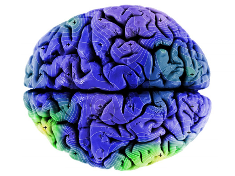 Magnetite levels in the human brain