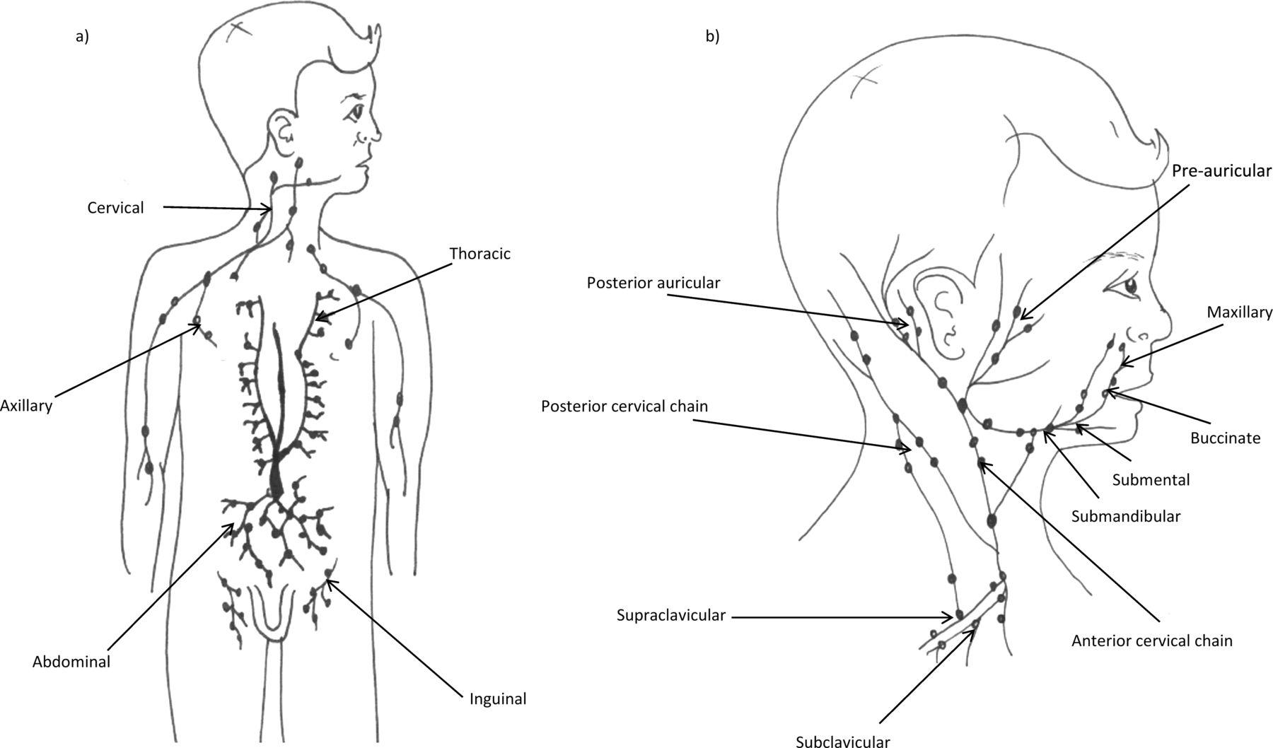Lymphadenopathy In Children Refer Or Reassure King Et