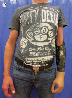 Protesis bionicas