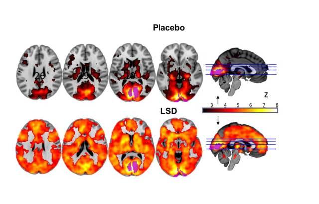 La imagen muestra como, con los ojos cerrados, intervienen muchas más áreas del cerebro en la experiencia visual bajo los efectos del LSD (abajo) que con el placebo.