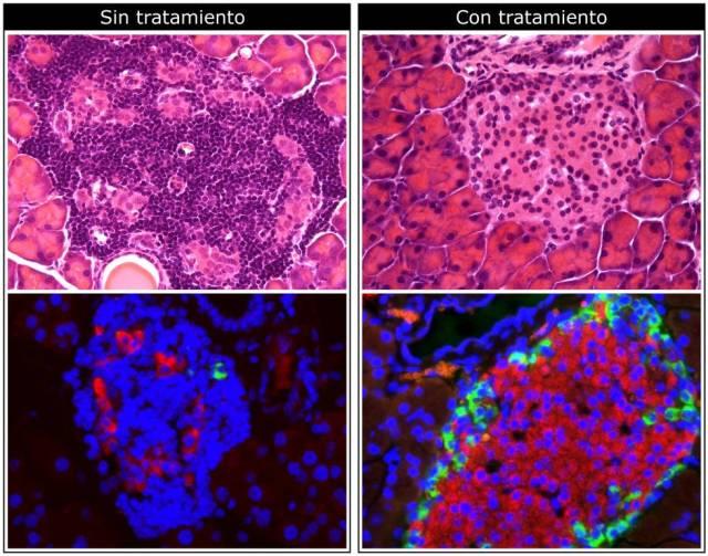 Imagens de microscópio do pâncreas em um animal de teste. Acima: a droga reduz a infiltração de células do sistema imunológico (pontos roxos mais escuros). Abaixo: o medicamento aumenta a produção de insulina (em vermelho)