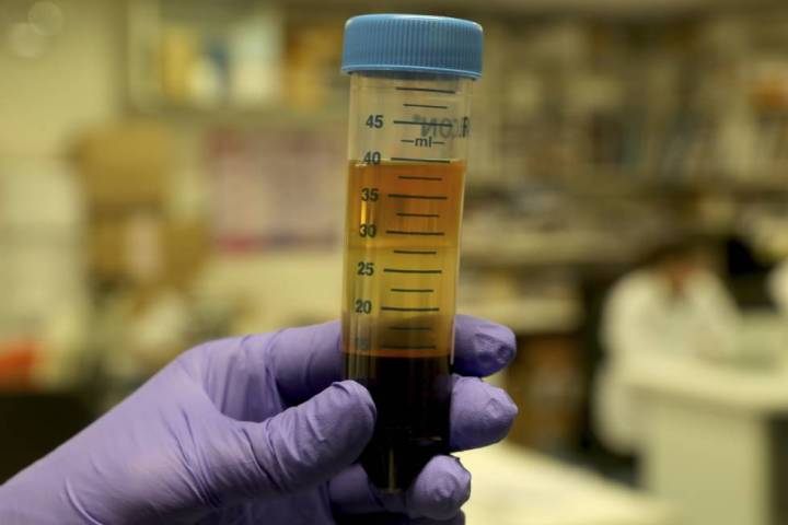 A researcher holds a blood sample in the laboratory of the biobank of Gregorio Marañón.