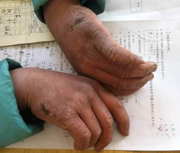 Las manos congeladas de Wang Fuman.