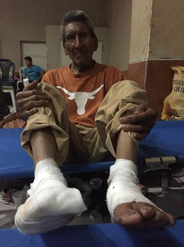 Domingo Lopez (79), con los pies quemados por la lava.