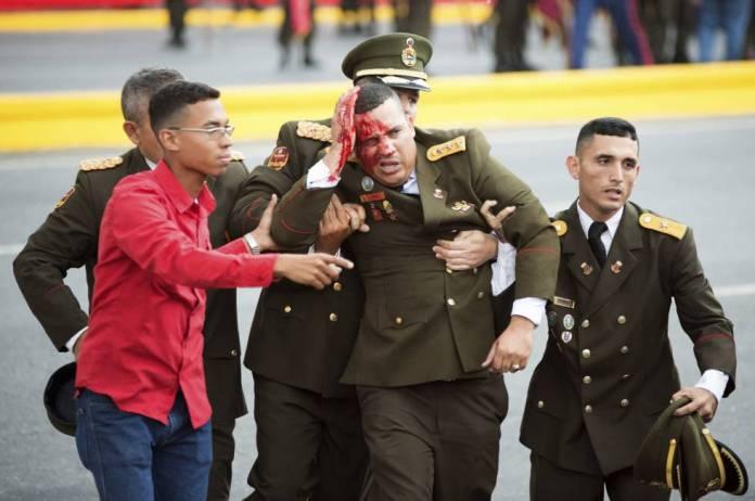 Un militar venezolano herido, momentos después del incidente.