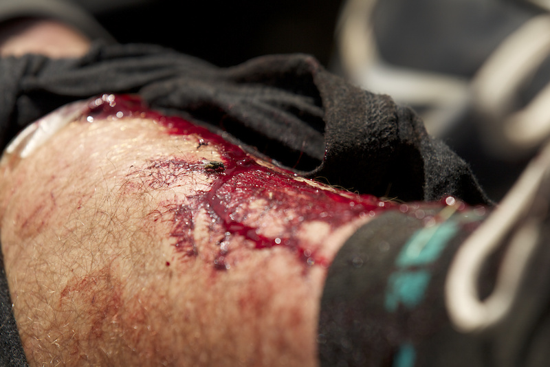 The puncture in Joey Schusler s shin resulted in a ride to the hospital and 30 stitches.