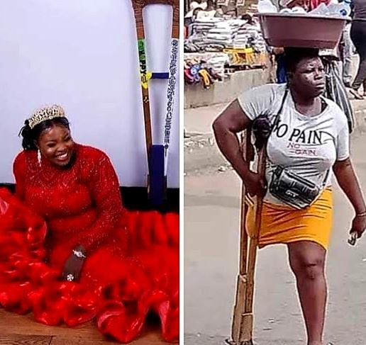 Just In: Viral amputee who claims to have lost her leg and parents in a ghastly car accident has been exposed