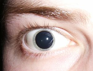 A person's eyes dilate excessively and cannot be altered even by shining a light directly into the eye: